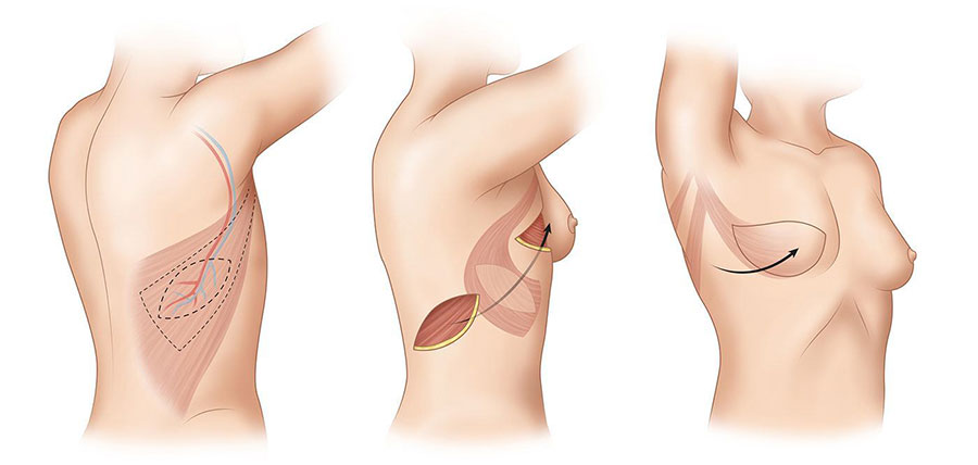 breast reconstruction - dr mahmoud fakiha